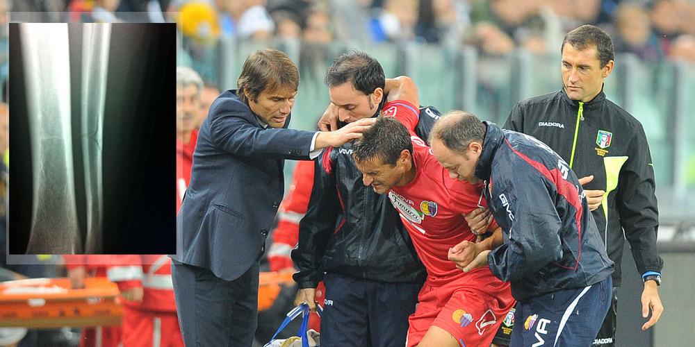 È subito derby all'esordio stagionale Catania-Sicula Leonzio 0-1 LIVE